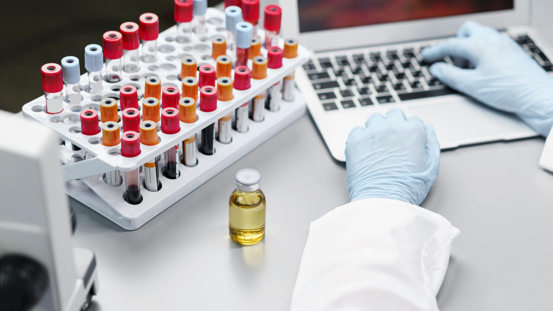 female-researcher-laboratory-with-vaccine-bottle-test-tubes
