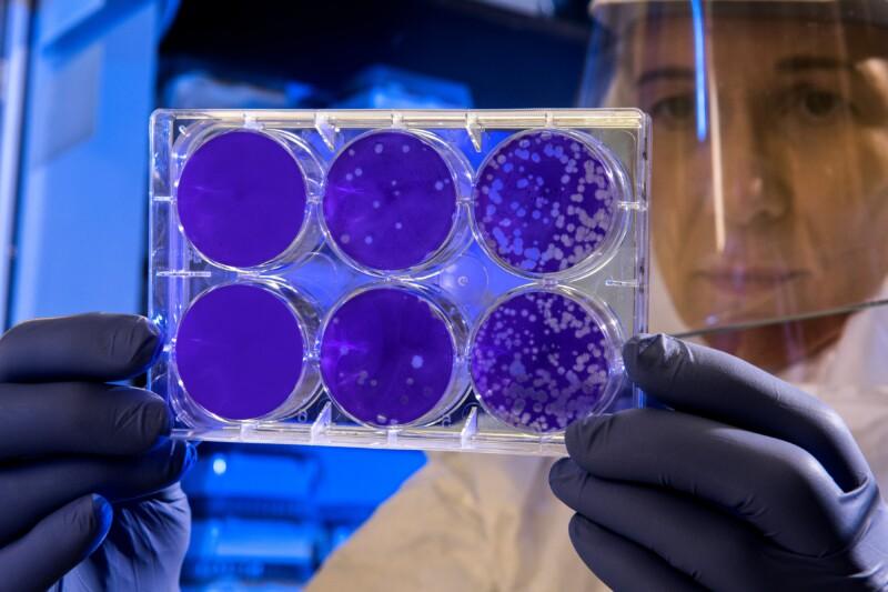 woman-scientist-examines-results-virus-medicine
